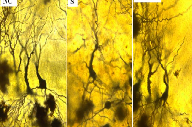 Photomicrographs of Hippocamal CA3 neurons (Golgi staining)
