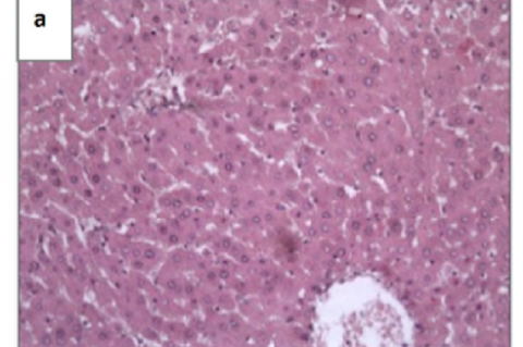 Histological figues of liver sections of rats teated with